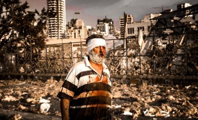Beyrutta Atom Bombasını Andıran Patlama! Ölü Sayısı Korkunç Boyuta Ulaştı